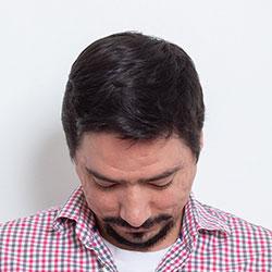 Emiliano Hotes